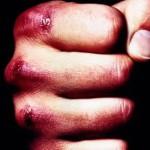 Удар в лицо сотрудника полиции может стоить правонарушителю 10 лет. Фото: с сайта www.kirmayak.ru.
