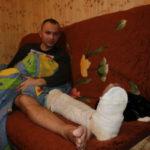 """Николаю предстоит долгая реабилитация. Фото: Мария Чекарова, """"Глобус"""""""